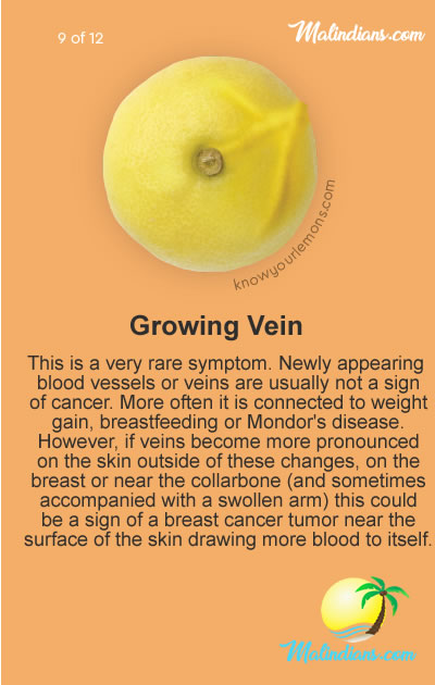 growing vein - No bra day -  the best reason to take it off